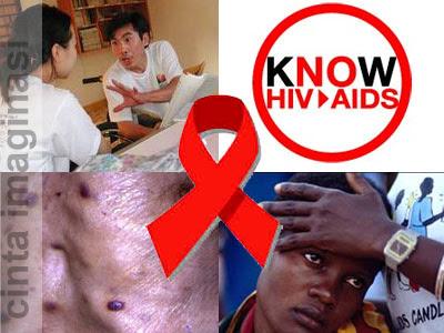 HIV/AIDS – Pengertian, Penyebab, Gejala, dan Pengobatan