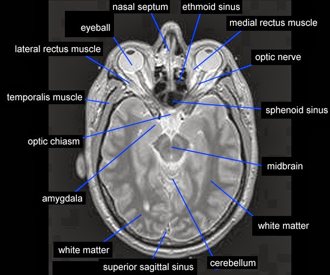 Mri Temporalis Muscle Anatomy Radiology Anatomy Images