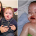 Baby Blisters & Burns From Inside, Then Mom Recalls What Was In His Mouth