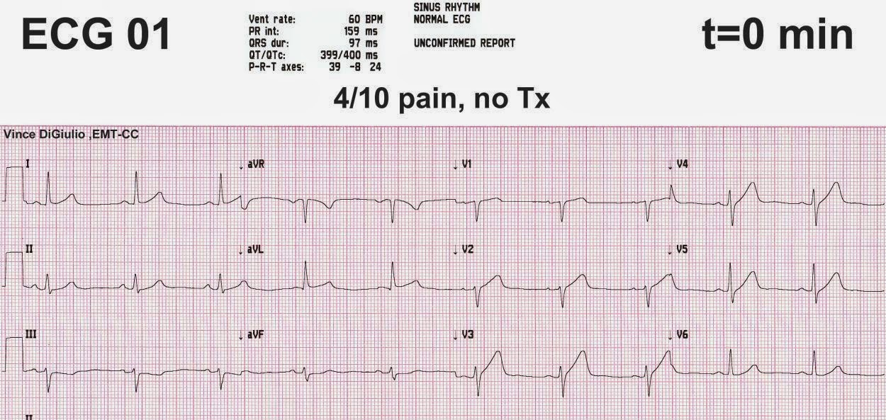 dr. smith's ecg blog: incredible case demonstrating the value of