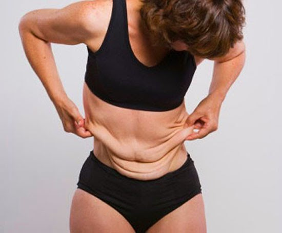 Tratamientos para bajar de peso