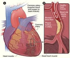 serangan gejala jantung koroner