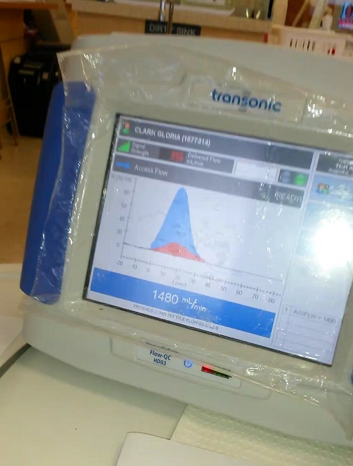 Transonic Monitoring for Dialysis Access