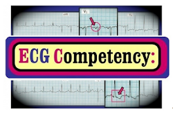 ECG COMPETENCY