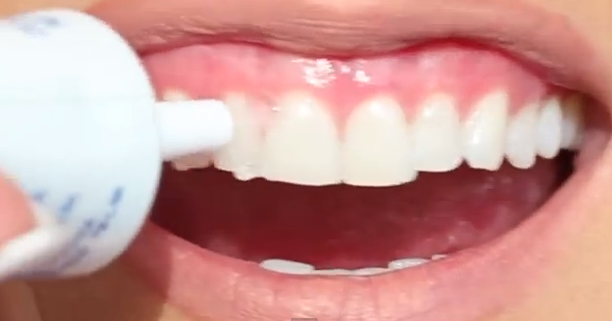 how to get really white teeth with braces