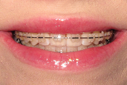 Before And After Pics Of Braces. teeth races before and after.