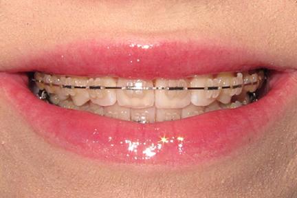 Ceramic braces for teeth