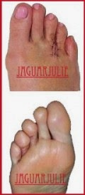 mortons neuroma surgery post op 6 days jaguarjulie right foot