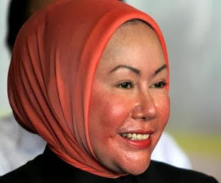 atut+chosiyah Benarkah Ratu Atut Operasi Plastik ?, Berikut Ulasannya