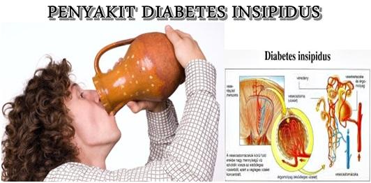 Obat Herbal Diabetes Insipidus Secara Tradisional