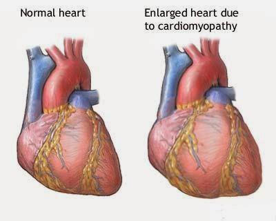 obat herbal jantung bengka