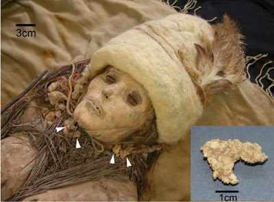 """Pedaços de queijo, mostradas com setas, foram coletadas a partir do pescoço e no peito de uma múmia feminina conhecida como """"Beauty of Xiaohe"""". A seta mostra uma vista ampliada de uma protuberância do queijo."""