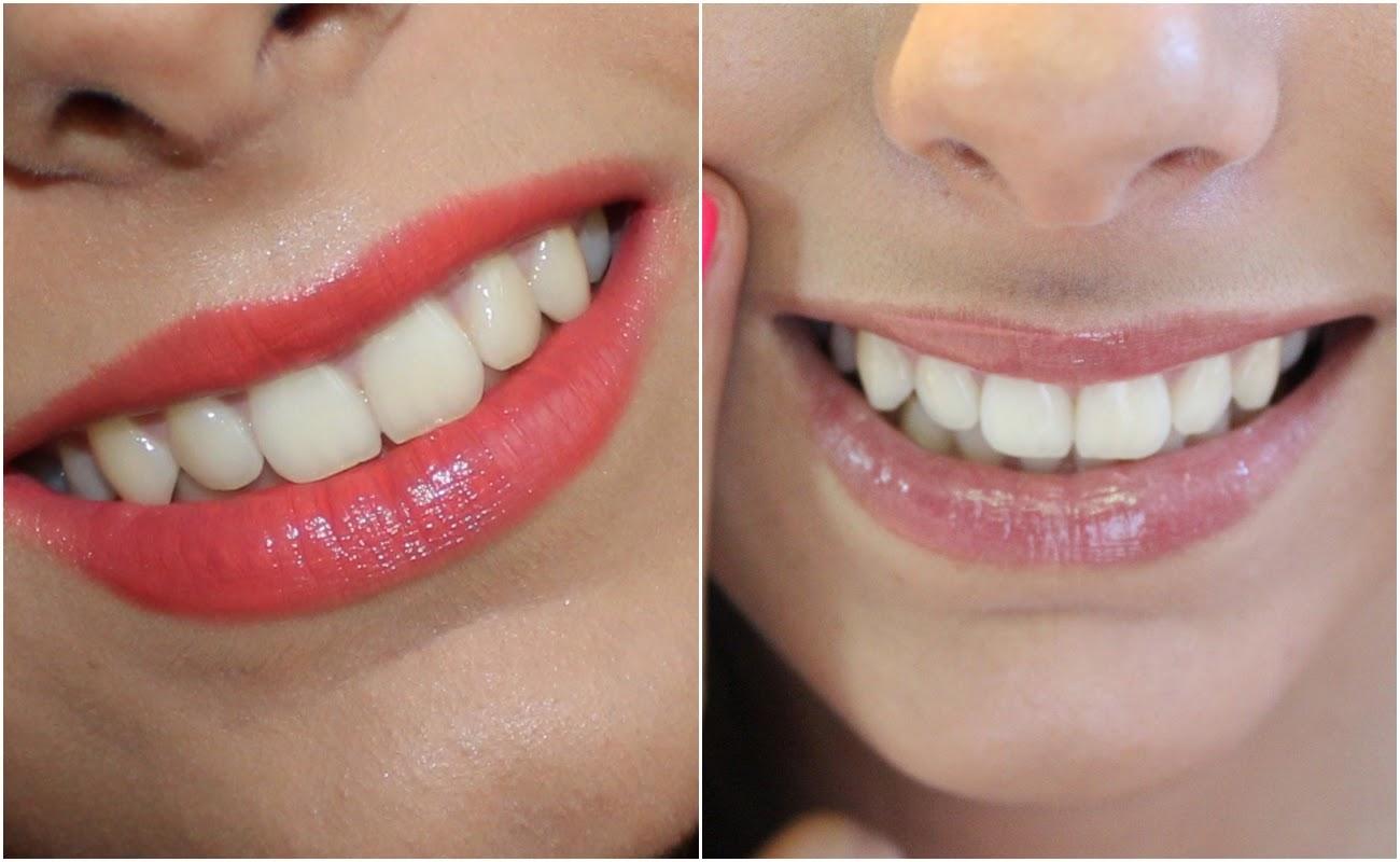 A Lily Testou I White Branqueamento De Dentes Rapido 50 Elasticos