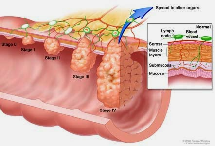 Phân biệt bệnh ung thư trực tràng với bệnh trĩ