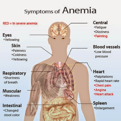 Simptom anemia