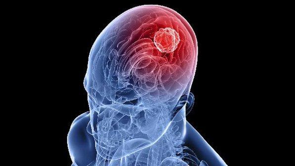 tumor no cerebro