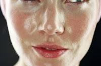 mengatasi kulit berminyak dan kusam