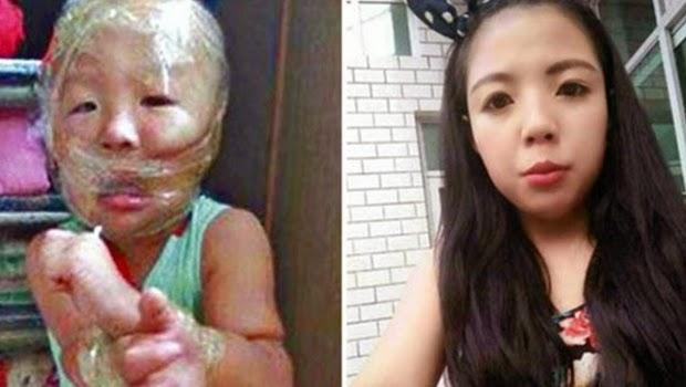 Terlalu Bawel, Guru Menggunakan Selotip Untuk Menutupi Mulut Anak Didiknya