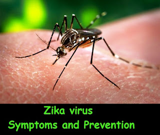 Zika virus - Symptoms and Prevention