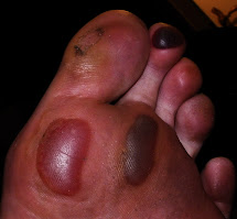 Blood Blister On Foot