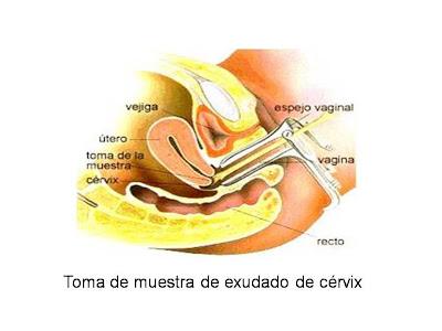 Toma de muestra exudado de cervix