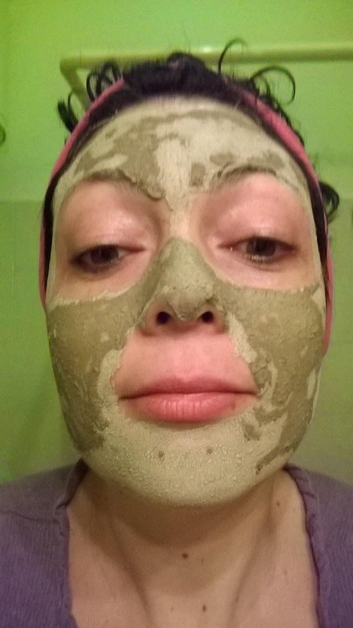 Rimedi di gente per cura di acne su una faccia