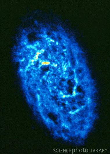 Gas Hidrogen Murni Menggunakan Foto Radiologi (Credit: sciencephoto ...