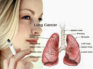 Obat Herbal Untuk Kanker Paru-Paru