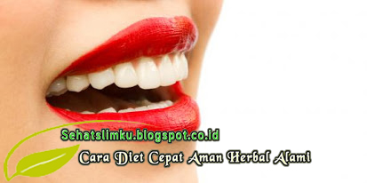 Dampak Buruk Produk Pemutih Gigi Instan Sehat Slim Ku Cara Diet