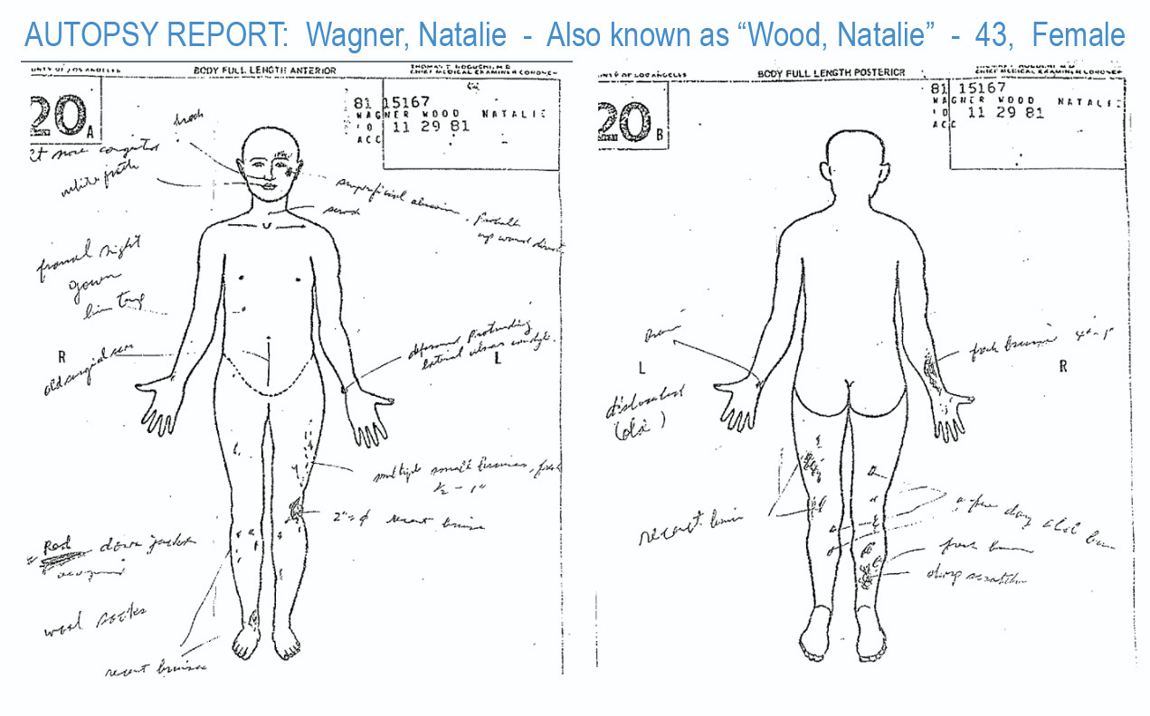 Natalie Wood autopsy diagramming bruises and lacerations