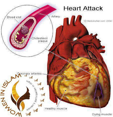a description of the heart and its diseases Lung diseases are disorders or infections that affect the lungs and cause breathing problems  primary ciliary dyskinesia (national heart, lung, and blood institute.