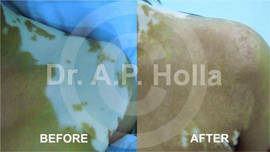 http://www.managevitiligo.com/gallery/surgical-results/