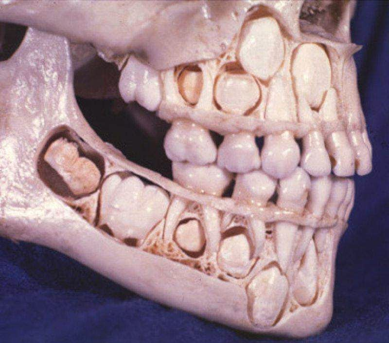 46 Unbelievable Photos That Will Shock You - A Child's Skull Before Losing Baby Teeth