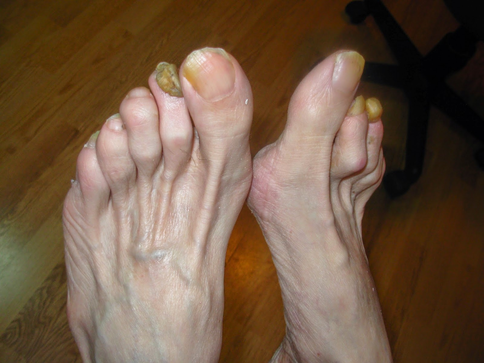 Diabetic, possible fungus, thick nails... | Lucie\'s Foot Care