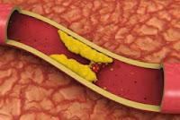 Pengertian, Fungsi, Jenis Kolesterol