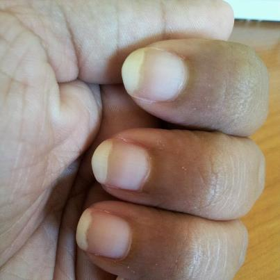 Yellow Nails Causes And Prevention