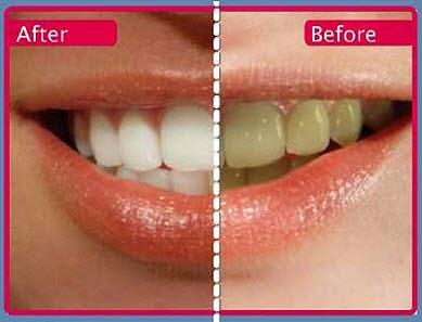 6 Cara Memutihkan Gigi yang Sudah Kuning ilustrasi gigi kuning