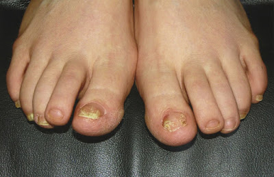 Natural ways to eliminate the athlete's foot