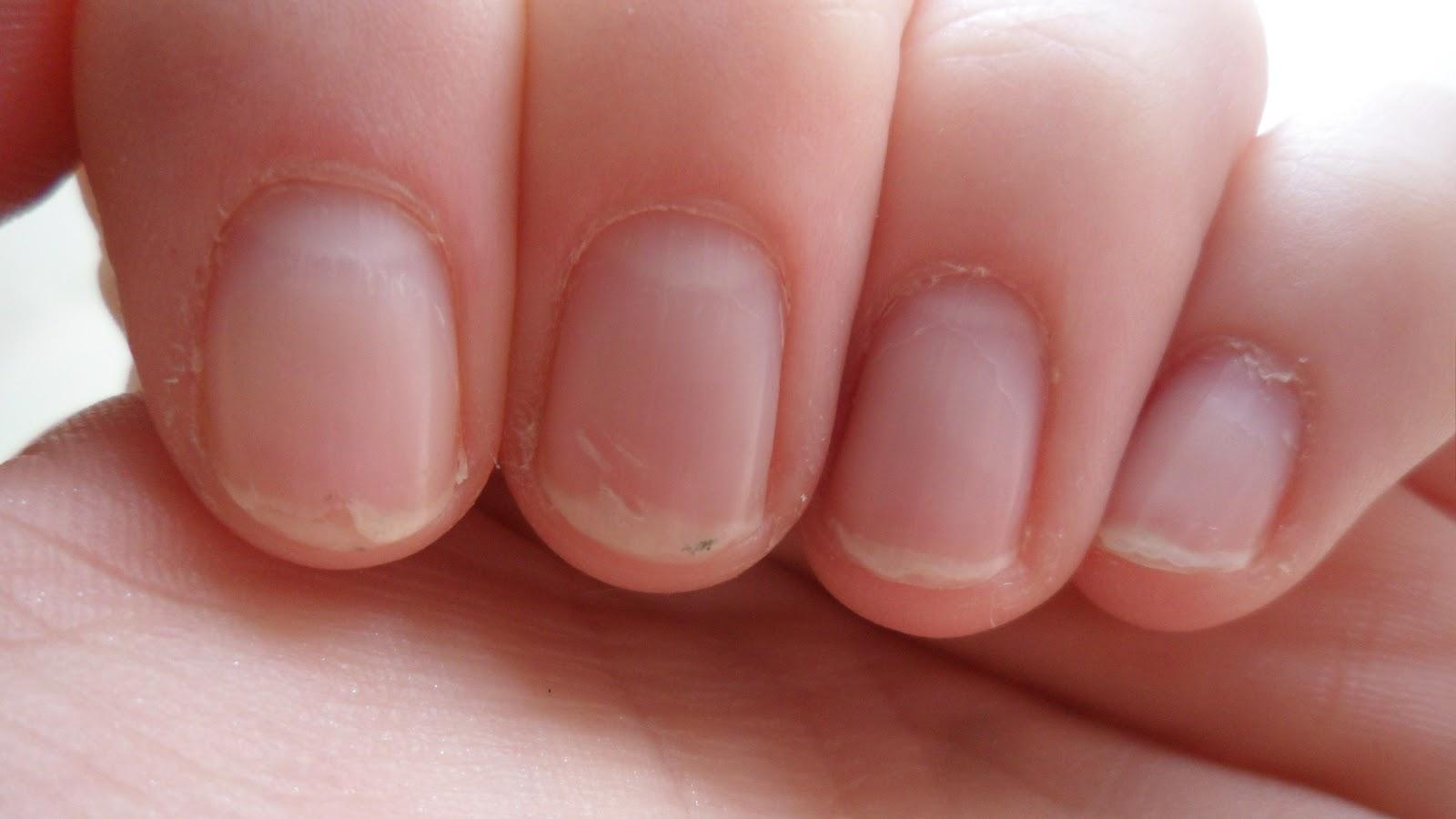 Cornish Beauty: How to Fix Damaged Nails ft. OPI