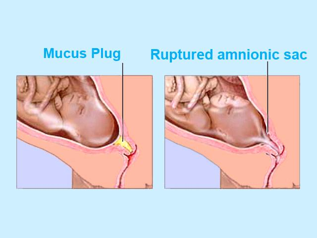 Mucous vaginal discharge