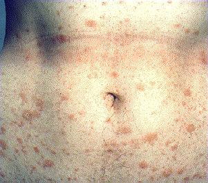 enlarged lymph node in groin