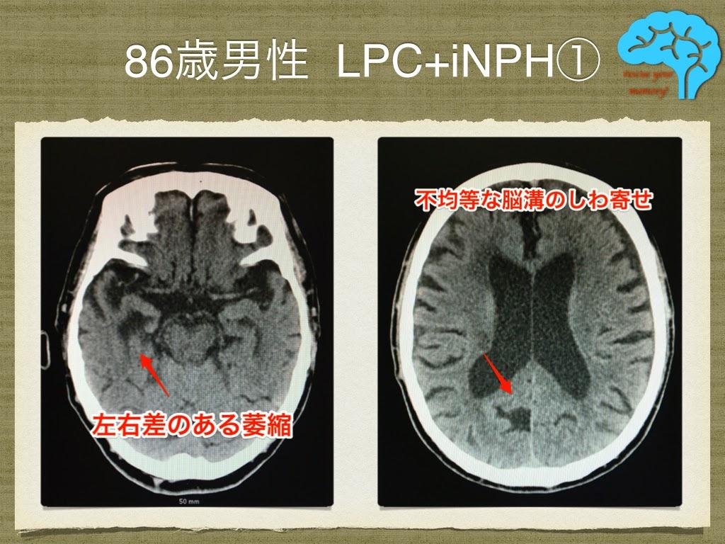 LPCと特発性正常圧水頭症の合併①