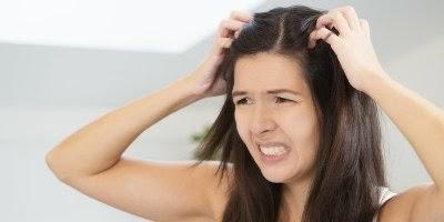 4 Bahan Alami Bantu Atasi Ketombe Bandel di Kulit Kepala