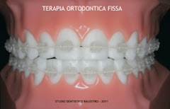 Terapia ortodontica fissa