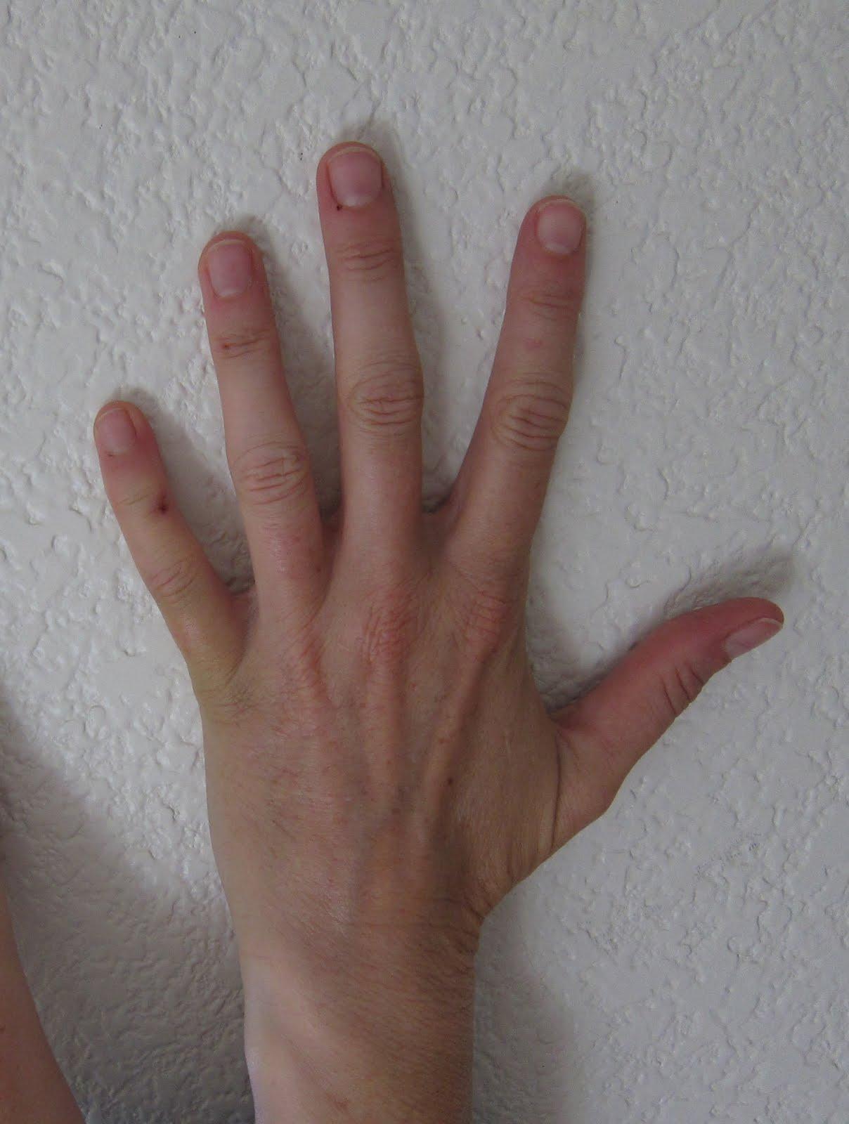 Treating Smashed Fingers  DrGreenecom