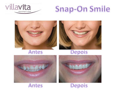 Slide3 - Snap-On Smile: O sorriso de Hollywood
