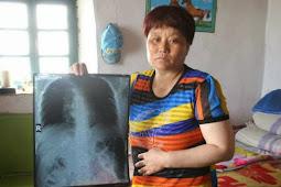 Bertahun-tahun Menahan Sakit, 9 Jarum Tertanam di Tubuh