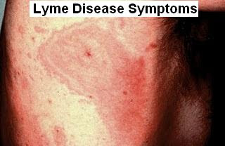 Lyme Disease: Causes, Symptoms, Treatment And Prevention