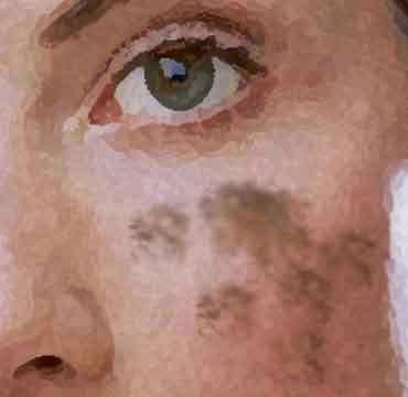De la crema la corteza de las manchas de pigmento