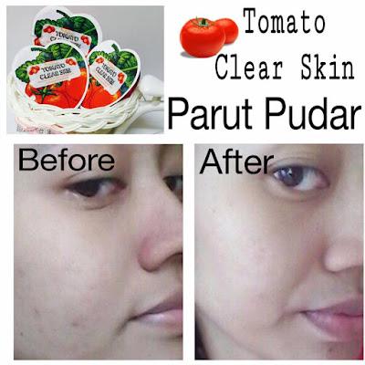 tomato clear skin